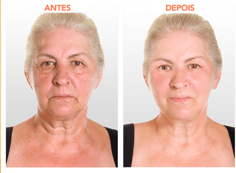 revitalize hialuronic depoimento 2