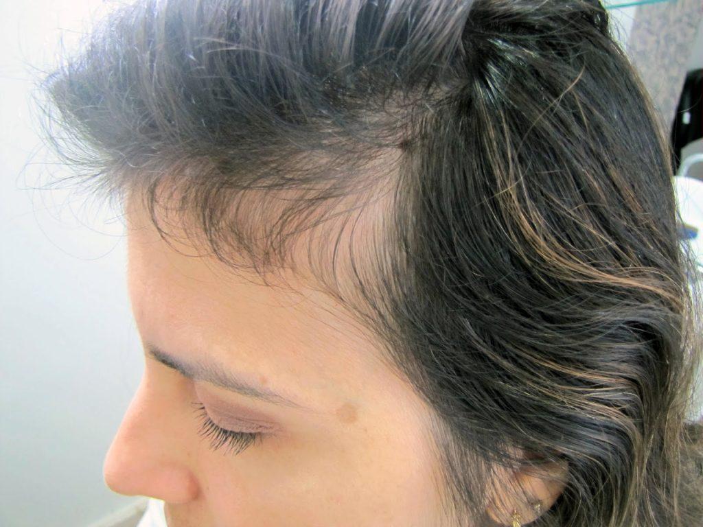 mulher com alopecia